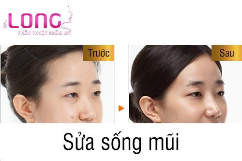 sua-song-mui-cu-co-kho-thuc-hien-khong-1