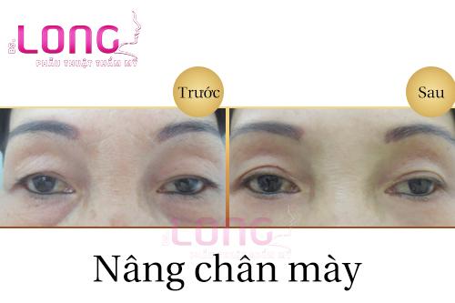 nang-mui-xong-co-nang-chan-may-duoc-khong-1