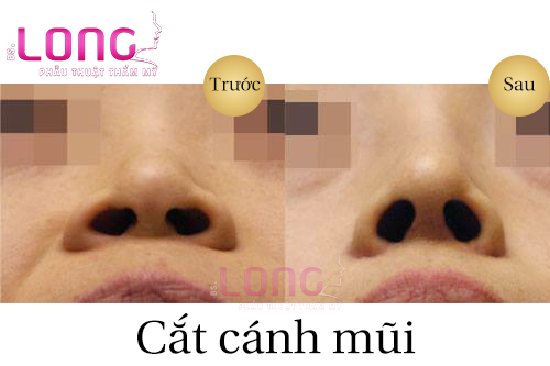 cat-canh-mui-co-an-toan-khong-1