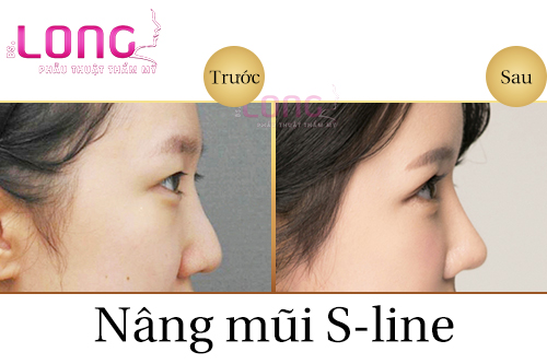 nang-mui-sline-co-dau-khong-1
