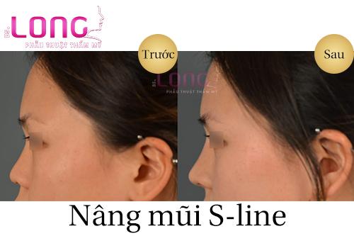 nang-mui-sline-co-vinh-vien-khong-1