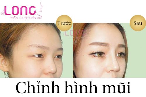 dia-chi-chinh-hinh-mui-o-dau-tot-tphcm-1