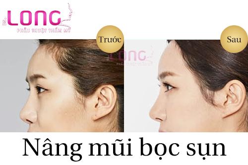 nang-mui-boc-sun-co-vinh-vien-khong-1
