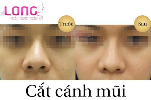 tham-my-cat-canh-mui-co-de-lai-seo-khong-1