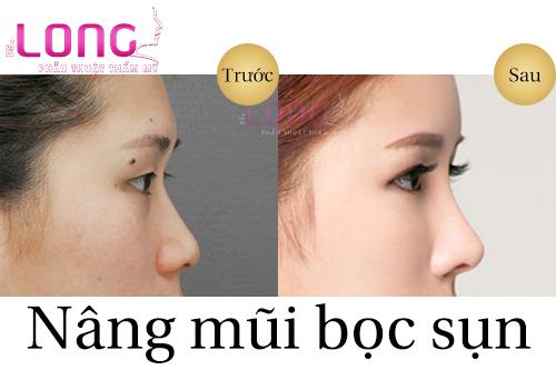 nang-mui-boc-sun-la-gi-1