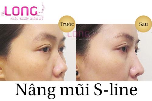 nang-mui-sline-su-dung-duoc-bao-lau-1