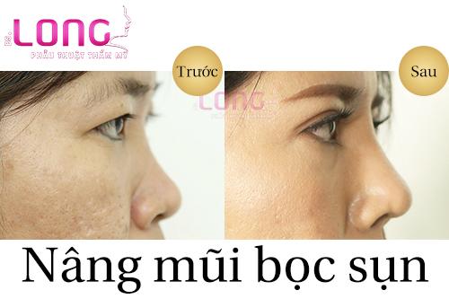 nang-mui-khong-phau-thuat-co-an-toan-khong-1