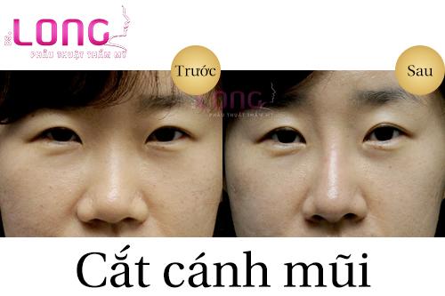 chi-phi-cat-canh-mui-gia-bao-nhieu-tien-1