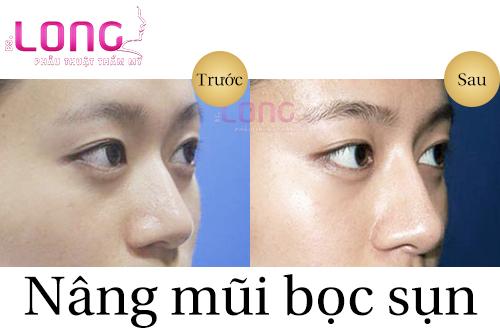 nang-mui-boc-sun-nhan-tao-bao-lau-se-dep-1