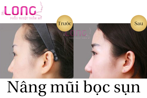 nang-mui-boc-sun-tu-than-co-su-dung-vinh-vien-khong-1