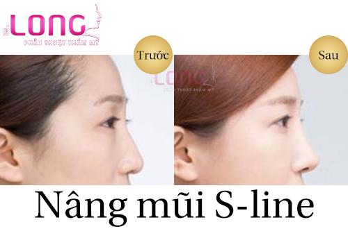 nang-mui-sline-bang-sun-tu-than-vuot-troi-1