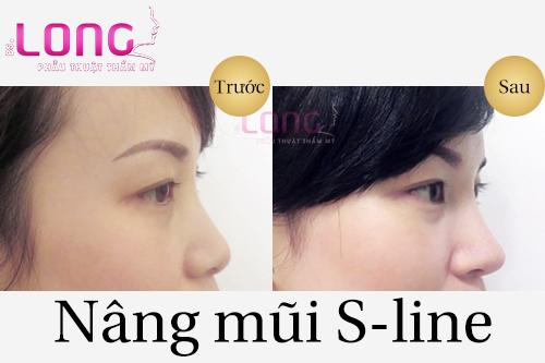 tieu-chuan-nang-mui-sline-nhu-the-nao-la-dep-1