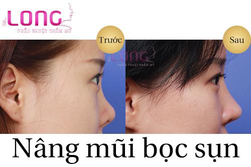nang-mui-phau-thuat-boc-sun-can-la-gi-1