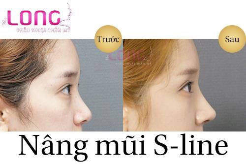 gia-nang-mui-sline-o-dau-re-va-chat-luong-1