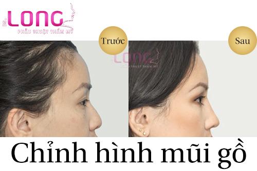 song-mui-go-la-gi-va-co-can-phai-phau-thuat-khong-1