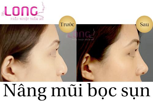 nang-mui-boc-sun-co-bao-nhieu-muc-gia-1
