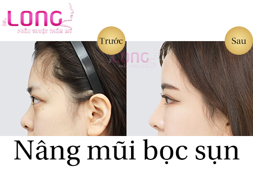 phau-thuat-nang-mui-co-dau-khong-1
