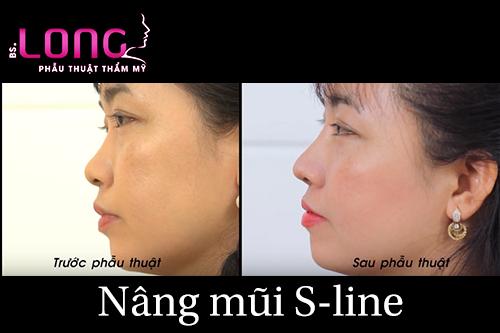 nang-mui-sline-co-chinh-hinh-vach-ngan-co-duoc-khong-1