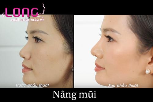 co-bao-nhieu-phuong-phap-phau-thuat-nang-mui-hien-nay-1