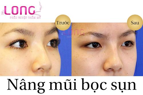 nang-mui-boc-sun-tu-than-co-dat-khong-1
