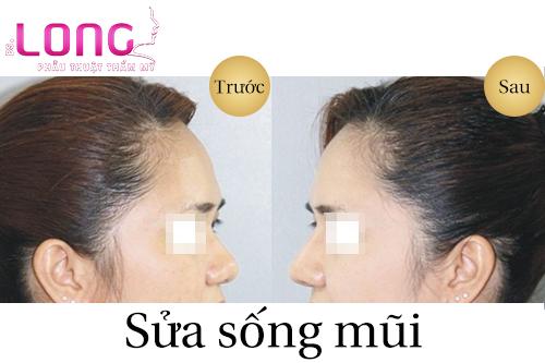 sua-song-mui-cu-co-bi-bien-dang-khong-1