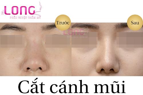 cat-canh-mui-thuc-hien-nhu-the-nao-1