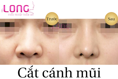 meo-chon-dia-chi-cat-canh-mui-o-dau-dep-nhat-1