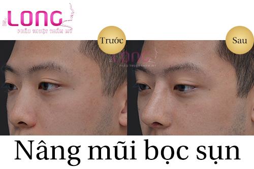 nang-mui-nam-co-khac-voi-nu-khong-1